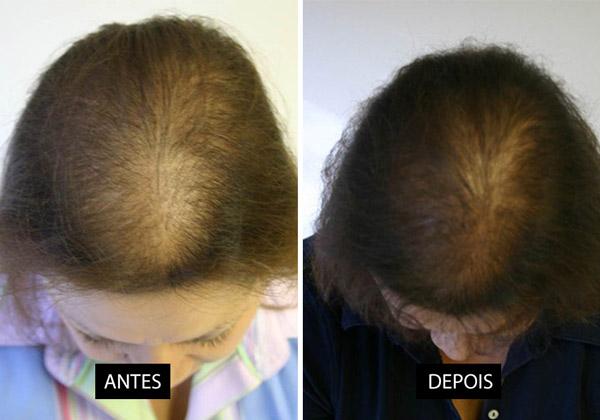 Megga Hair